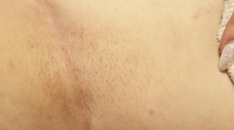 IPL permanent hårborttagning Kräm Hudvårdsstudio amandahans skönhetsblogg