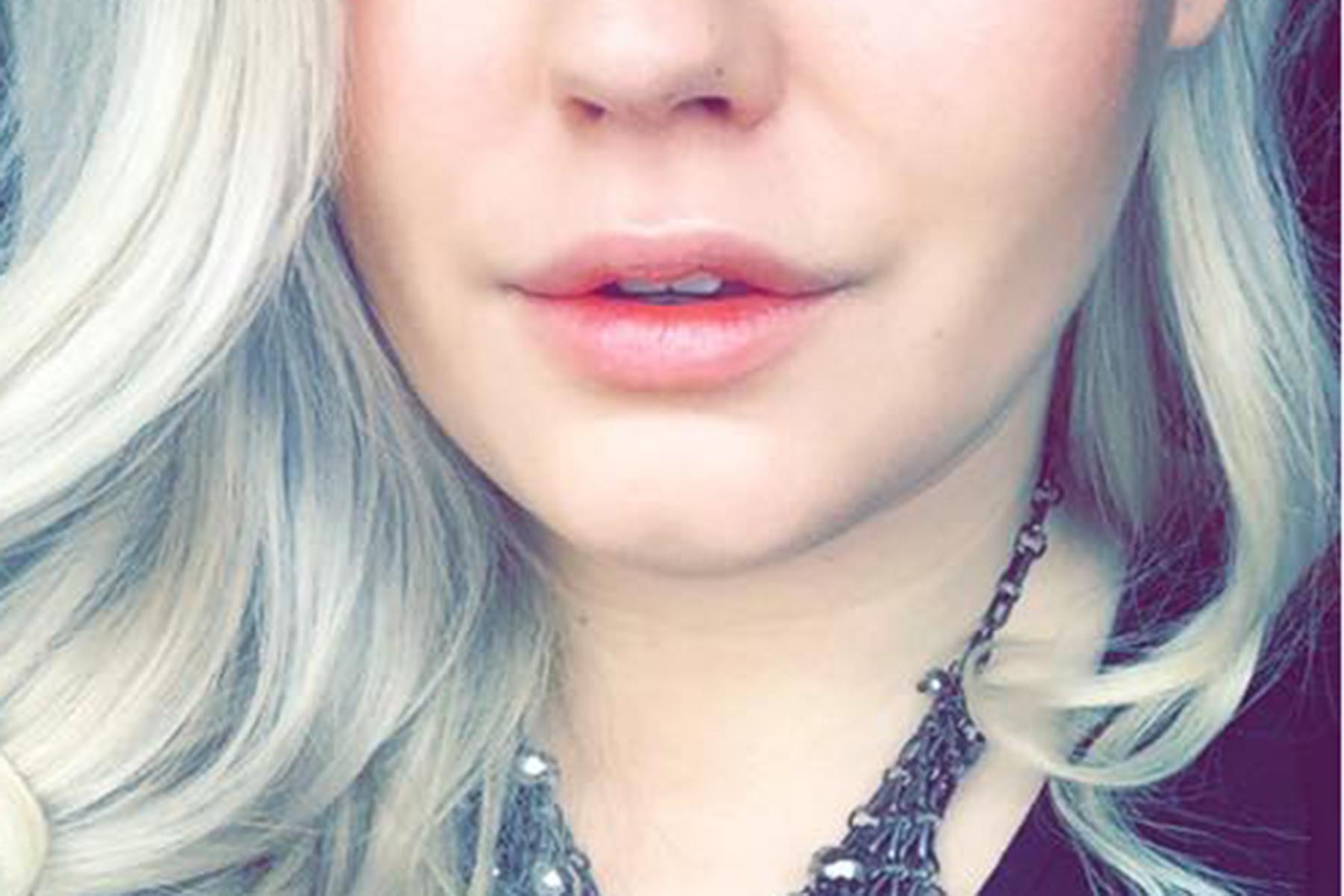Läppförstoring Stylage M Amandahans skönhetsblogg före efter bild
