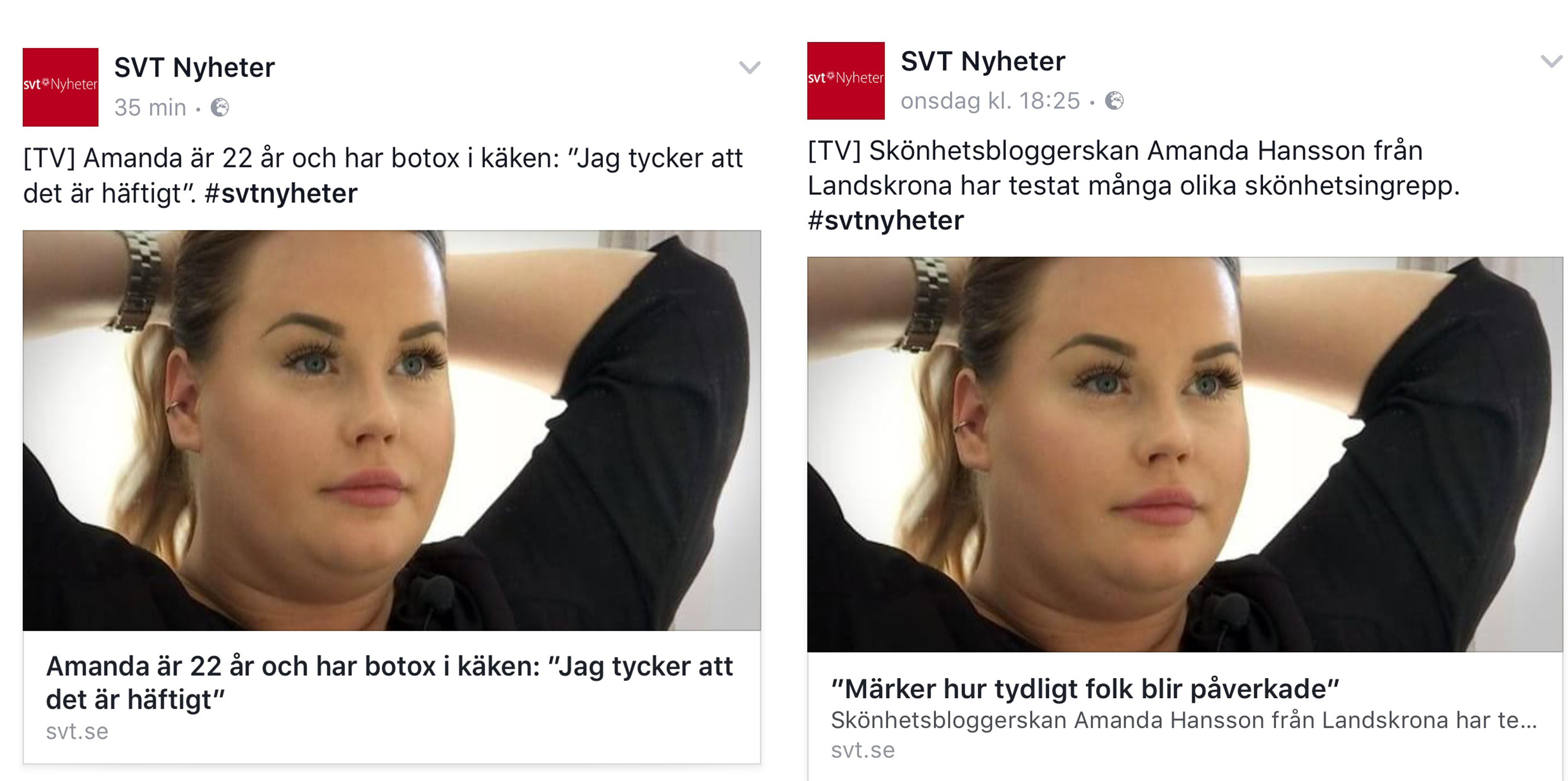 Vad jag tycker om inslaget på SVT, svt, fillersinjektion, skönhetsbehandling, botox, fillers, juvederm, restylane, stylage, skönhetsblogg, skönhetsbloggare, amandahans